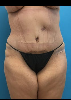 Tummy Tuck Gallery - Patient 46612070 - Image 2