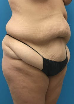 Tummy Tuck Gallery - Patient 46612070 - Image 3