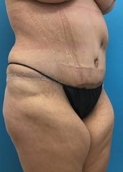 Tummy Tuck Gallery - Patient 46612070 - Image 4