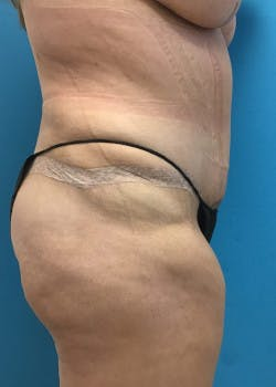 Tummy Tuck Gallery - Patient 46612070 - Image 6