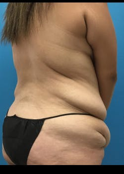 Tummy Tuck Gallery - Patient 46612070 - Image 7