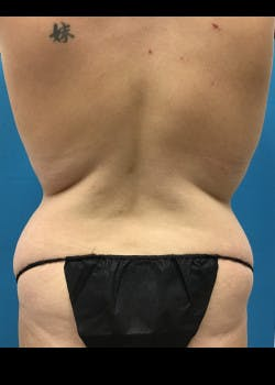 Tummy Tuck Gallery - Patient 46612080 - Image 7