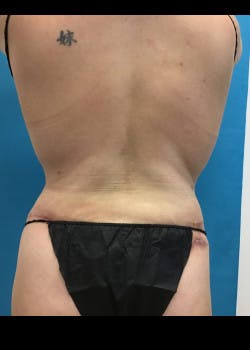 Tummy Tuck Gallery - Patient 46612080 - Image 8