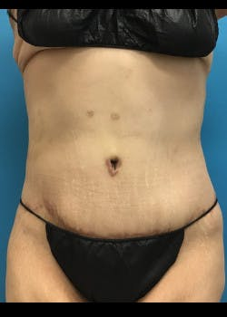 Tummy Tuck Gallery - Patient 46612081 - Image 2