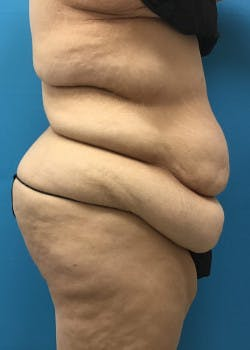 Tummy Tuck Gallery - Patient 46612081 - Image 3