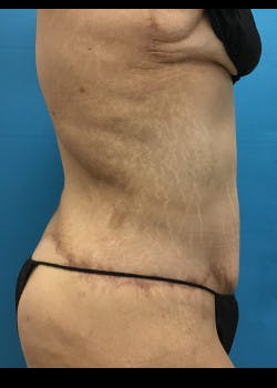Tummy Tuck Gallery - Patient 46612081 - Image 4