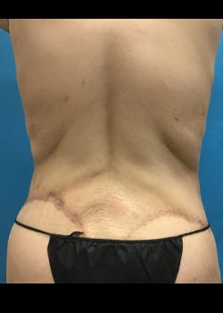 Tummy Tuck Gallery - Patient 46612081 - Image 6