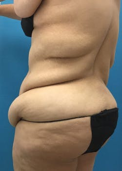 Tummy Tuck Gallery - Patient 46612081 - Image 7