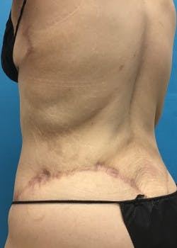 Tummy Tuck Gallery - Patient 46612081 - Image 8