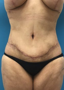 Tummy Tuck Gallery - Patient 46612083 - Image 2