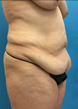 Tummy Tuck Gallery - Patient 46612083 - Image 3