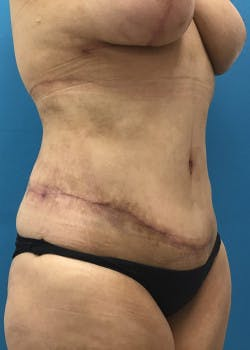Tummy Tuck Gallery - Patient 46612083 - Image 4