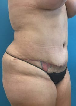 Tummy Tuck Gallery - Patient 46612086 - Image 4