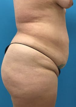 Tummy Tuck Gallery - Patient 46612086 - Image 5