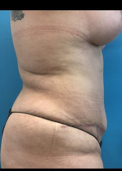 Tummy Tuck Gallery - Patient 46612086 - Image 6