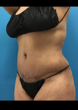Tummy Tuck Gallery - Patient 46612119 - Image 2