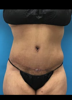 Tummy Tuck Gallery - Patient 46612119 - Image 4