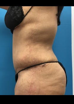 Tummy Tuck Gallery - Patient 46612119 - Image 6