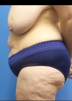 Tummy Tuck Gallery - Patient 46612166 - Image 1