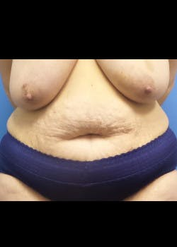 Tummy Tuck Gallery - Patient 46612166 - Image 3