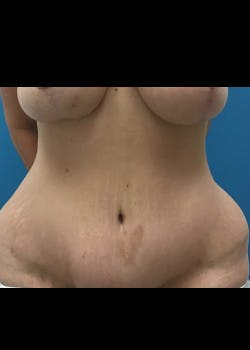 Tummy Tuck Gallery - Patient 46612166 - Image 4