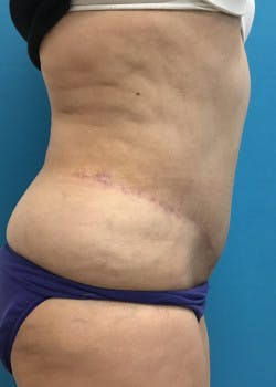 Tummy Tuck Gallery - Patient 46612181 - Image 2