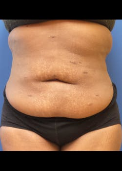 Tummy Tuck Gallery - Patient 46612182 - Image 1