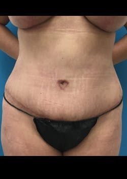 Tummy Tuck Gallery - Patient 46612189 - Image 2