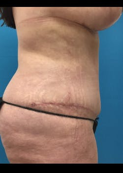 Tummy Tuck Gallery - Patient 46612189 - Image 4