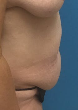 Tummy Tuck Gallery - Patient 46612214 - Image 3
