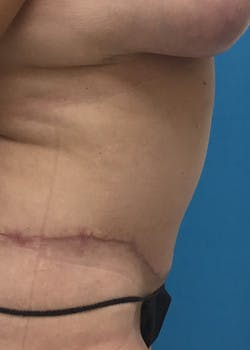 Tummy Tuck Gallery - Patient 46612214 - Image 4