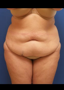 Tummy Tuck Gallery - Patient 46612265 - Image 1