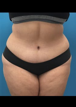 Tummy Tuck Gallery - Patient 46612265 - Image 2