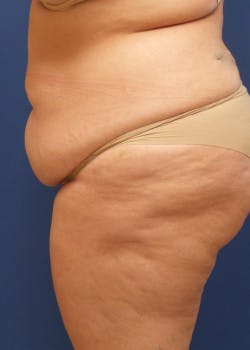 Tummy Tuck Gallery - Patient 46612265 - Image 3