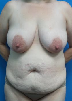 Tummy Tuck Gallery - Patient 46612280 - Image 1
