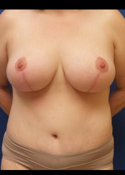 Tummy Tuck Gallery - Patient 46612280 - Image 2
