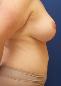 Tummy Tuck Gallery - Patient 46612280 - Image 4