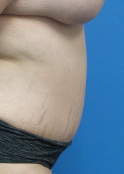 Tummy Tuck Gallery - Patient 46612299 - Image 4
