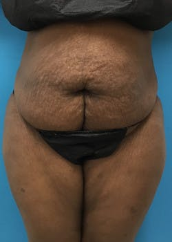Tummy Tuck Gallery - Patient 46612356 - Image 1