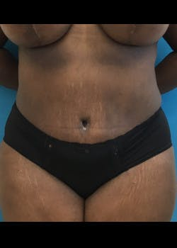 Tummy Tuck Gallery - Patient 46612356 - Image 2