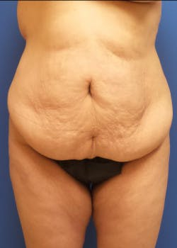 Tummy Tuck Gallery - Patient 46612396 - Image 1