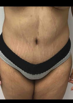 Tummy Tuck Gallery - Patient 46612396 - Image 2