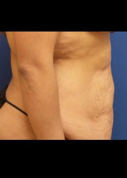 Tummy Tuck Gallery - Patient 46612396 - Image 3
