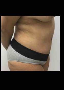 Tummy Tuck Gallery - Patient 46612396 - Image 4