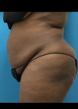 Tummy Tuck Gallery - Patient 46612540 - Image 3