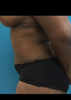 Tummy Tuck Gallery - Patient 46612540 - Image 4