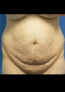 Tummy Tuck Gallery - Patient 46612595 - Image 1