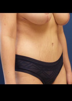 Tummy Tuck Gallery - Patient 46612595 - Image 4