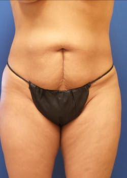 Tummy Tuck Gallery - Patient 46612597 - Image 1