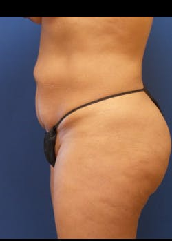Tummy Tuck Gallery - Patient 46612597 - Image 3